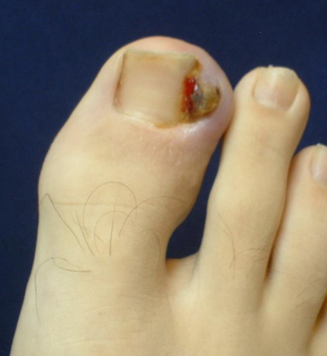 Uñero en el pie o uña encarnada
